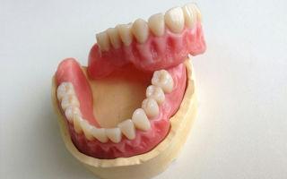 Плохо подогнанные зубные протезы могут спровоцировать развитие рака полости рта