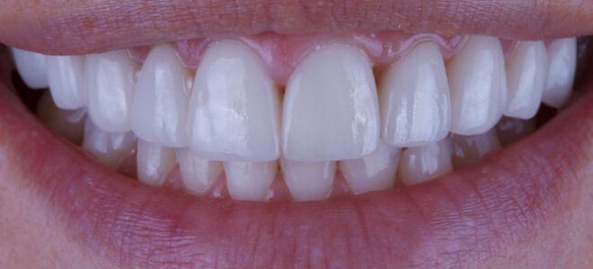 Виниры – основной тренд современной стоматологии
