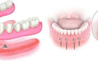 Основные технологии изготовления зубных протезов