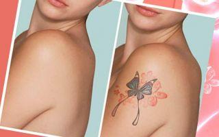 Удалить татуировку с тела посредством лазера