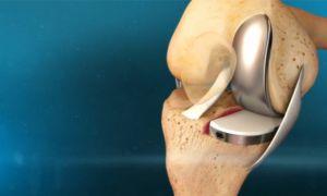 Эндопротезирование суставов человека