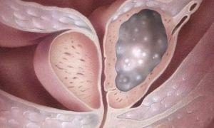 Как развивается рак простаты и какие обследования стоит пройти?